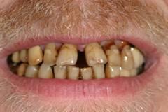 Имплантация зубов – фото ДО имплантации зубов - ЗУБНАЯ КЛИНИКА - DENTAL SUITE - Германия
