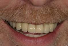 Имплантация зубов – фото ПОСЛЕ имплантации зубов- ЗУБНАЯ КЛИНИКА - DENTAL SUITE - Германия