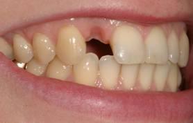 Имплантация зубов – фото ДО имплантации зуба- ЗУБНАЯ КЛИНИКА - DENTAL SUITE - Германия