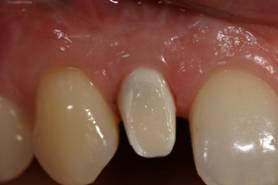 Имплантация зубов – фото этапов имплантации зуба- ЗУБНАЯ КЛИНИКА - DENTAL SUITE - Германия