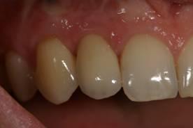 Имплантация зубов – фото ПОСЛЕ имплантации зуба - ЗУБНАЯ КЛИНИКА - DENTAL SUITE - Германия