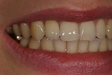 Результат имплантации зуба- ЗУБНАЯ КЛИНИКА - DENTAL SUITE - Германия
