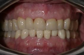 Имплантация зубов – фото ПОСЛЕ имплантации зубов - ЗУБНАЯ КЛИНИКА - DENTAL SUITE - Германия