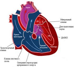 Тетрада Фалло - Пороки сердца