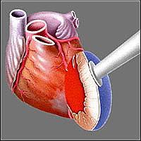 Головная часть Heart Laser, через которую поступают лазерные импульсы, прикладывается к эпикарду левого желудочка