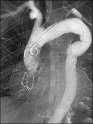 Ангиограмма, сделанная спустя несколько месяцев после операции