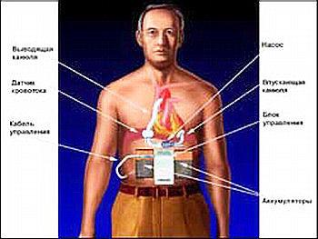 Искусственное сердце - в 2002 г. в кардиоцентре DHZB был имплантирован миниатюрный искусственный желудочек ИНКОР с магнитными опорами