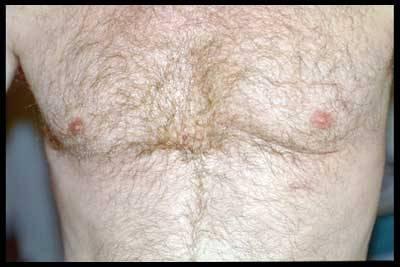КАРДИОХИРУРГИЯ в МОСКВЕ - Послеоперационный рубец после миниинвазивного шунтирования