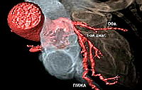 Трехмерная реконструкция коронарных сосудов. На рисунке хороша видна обводящая ветвь и передняя межжелудочковая артерия, а также первая диагональная ветвь, отходящая от ПМЖА