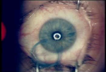 Лазерная коррекция зрения - ЛАСИК