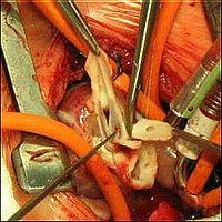 Операция «Свич» - один из этапов операции
