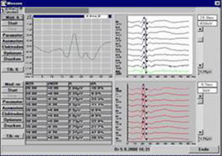 Интраоперационный мониторинг при выполнении операций на головном и спинном мозге