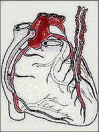 Справа на рисунке показан анастомоз левой грудной артерии с левой нисходящей коронарной артерией, а слева показан венозный шунт между аортой и правой коронарной артерией.