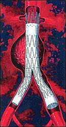 Y-стент для эндоваскулярного протезирования брюшной аорты