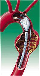 Позиционирование стента в грудной аорте, стент при этом находится в сложенном состоянии