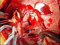 Полость перикарда после удаления больного сердца. Пациент подключён к аппарату искусственного кровообращения