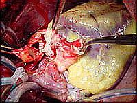 Этапы пересадки сердца - хирург производит сшивание лёгочных артерий донора и реципиента