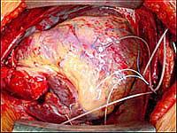 Этапы пересадки сердца - аппарат искусственного кровообращения отключен и сердце донора полностью переняло на себя все функции поддержки кровообращения